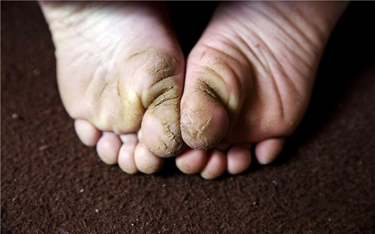 厚厚的老茧,皲裂的皮肤,如果告诉你,这是一个5岁小女孩的双脚,你会相信吗?这是李丽娟妹妹的双脚。因为山间的路崎岖难行,鞋子磨得很快。为了能让一双鞋子穿的更久一定,大多数的时候,她都会光着脚丫。