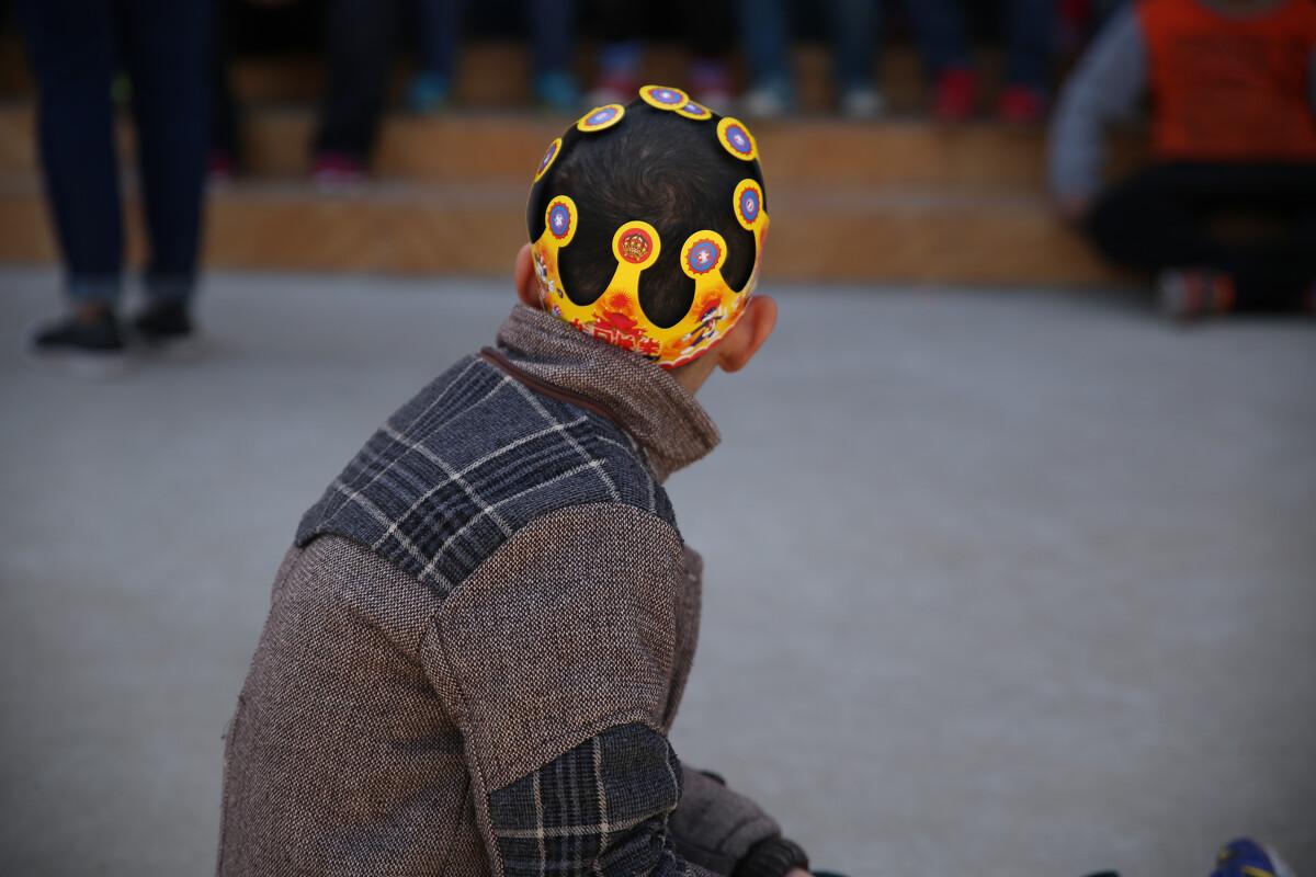 """疯狂疤痕""""吞噬""""5岁男童 小鸡鸡被拉扯至变形(图)-中新网"""